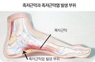 족저근막염